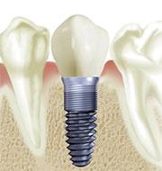Implant dentar exemplu